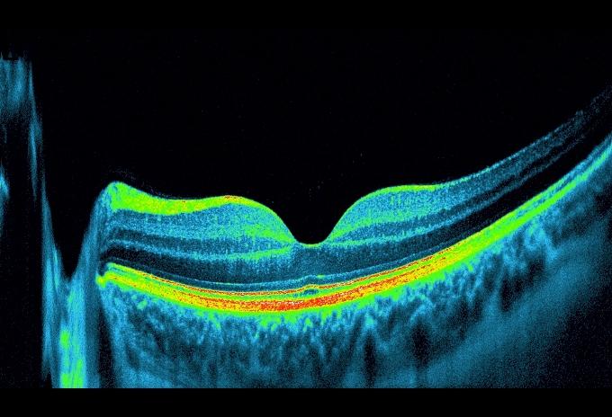 Optische Kohärenztomographie (OCT)