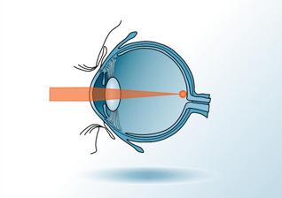 Presbyopie Korrektur