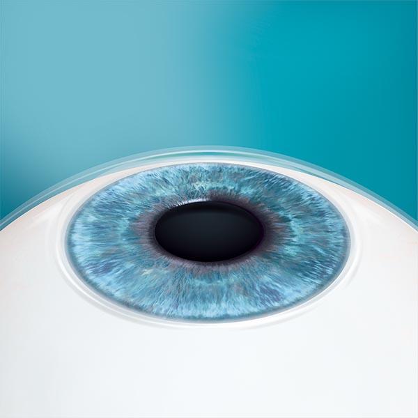 Die Pupille wird wieder eng getropft